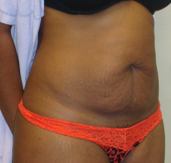 Abdominoplasty 344238