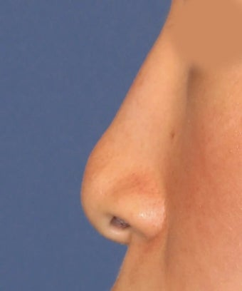 Revision Rhinoplasty 410604