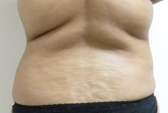 Liposuction of abdomen, waist and back