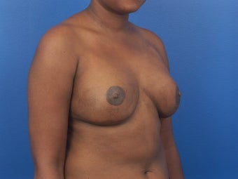 Breast Reconstruction following mastectomy 471763