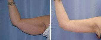 46 years old / brachioplasty (arm lift) before 344020
