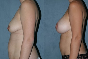 Breast Augmentation - Silicone Implants after 130838