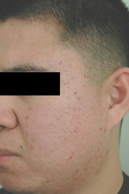 Laser Acne Scar Removal after 86374