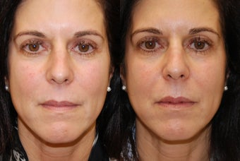 Lip Augmentation with Silikon-1000 before 407821