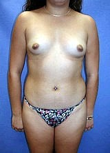 Liposculpture, Liposuction and Breast Augmentation before 151054
