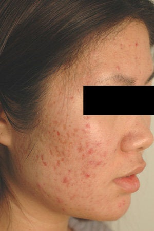 Pulsed Dye Laser Treatment for Red Acne Scars   before 104193
