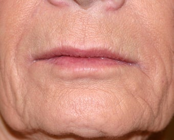 Restylane filler to the lips before 240875