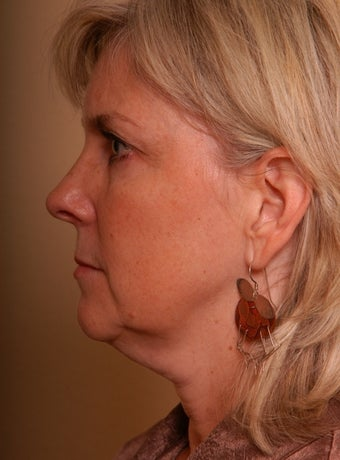 Refresher Facelift w/Neck Plication, Browllift, Fat Injections to Cheeks before 252876