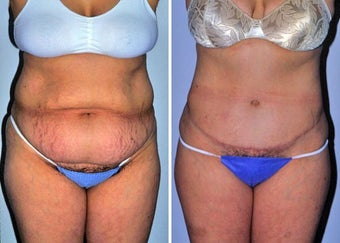 Abdominoplasty (Tummy tuck) before 330697