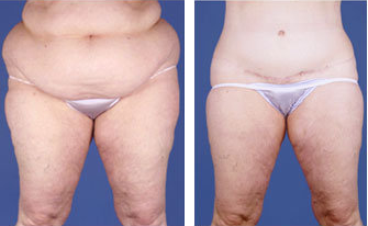 Central body lift with liposuction age 53