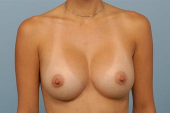 Breast Augmentation with Silicone Gel Implants after 344242
