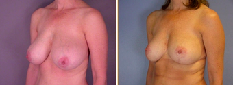 Breast Reduction before 271112