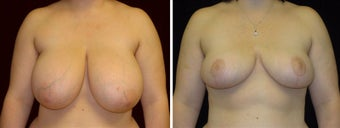 23 year old female, breast reduction before 630928