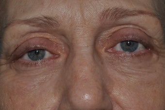 Bilateral upper and lower blepharoplasty, and 4 lid permanent eyeliner before 277496