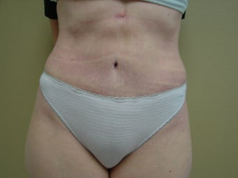 Tummy tuck  after 347575