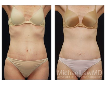 Abdominoplasty - Tummy Tuck before 396013