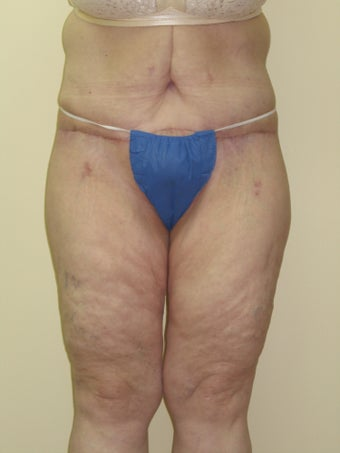 Body Lift, Tummy Tuck