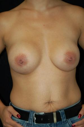 Breast augmentation after 392005
