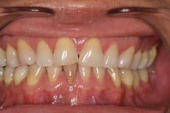 Porcelain Veneers before 213075