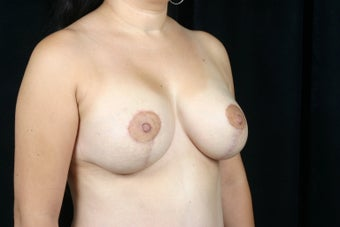 Breast Lift / Breast Augmentation   after 291004