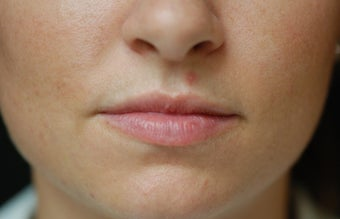 Juvederm Lip Augmentation before 624796