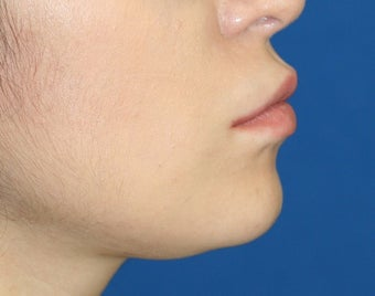 Lip Reduction after 250836
