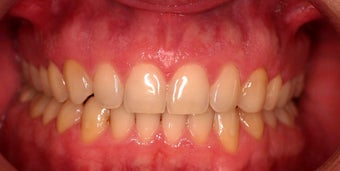 Invisalign after 208633