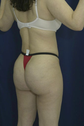 Brazilian Butt Lift and Tummy Tuck after 615904