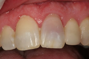 Internal Bleaching of Non-Vital Tooth before 379270