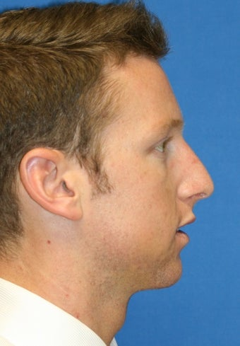 Rhinoplasty after 223264