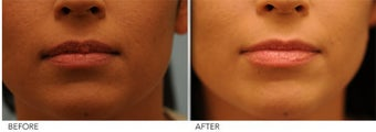 Upper Lip Reduction for Traumatic Lip Deformity before 391530
