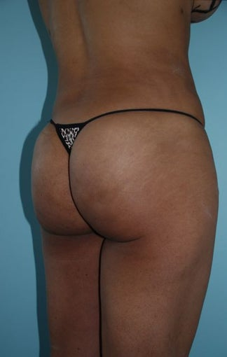 Buttock Augmentation 534393