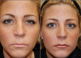 Liquid Face Lift with BOTOX Cosmetic and Silikon-1000 before 95072