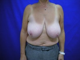 Breast Reduction before 606415
