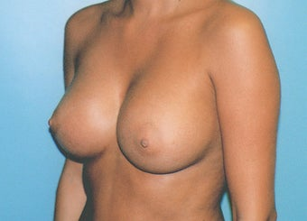 Breast Augmentation - Small B Cup to Small D Cup after 297501