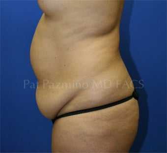 Tummy tuck before 199314