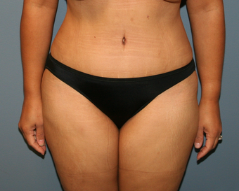 tummy tuck after 527241
