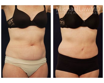 Liposuction after 495523