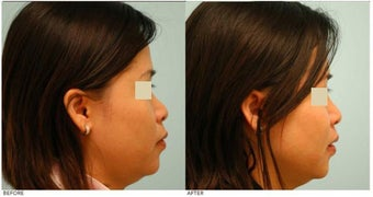 Dallas Asian Rhinoplasty after 136821