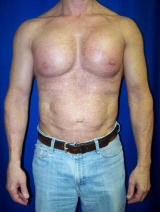 Pec Implants after 130083