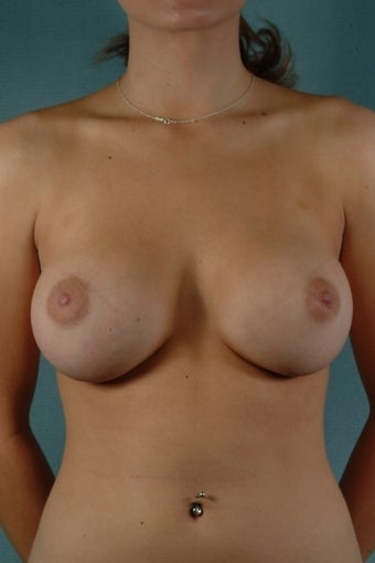 Breast Augmentation  after 240354