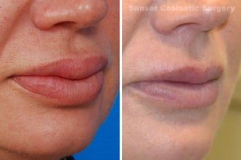 Lip Reduction and Repair after 485284