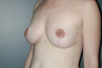 Breast Lift (Mastopexy) after 75009