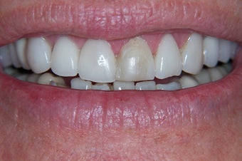 e-max crowns before 240635
