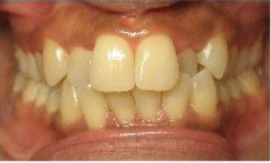 Invisalign Treatment before 225003