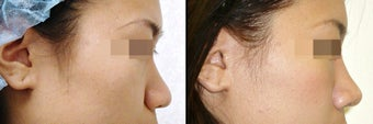 Rhinoplasty before 650748
