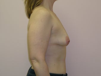 Breast Lift with Implants before 312862