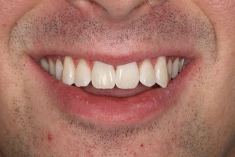 ZOOM whitening after 343720