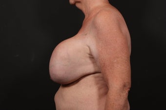 Breast reconstruction 614909