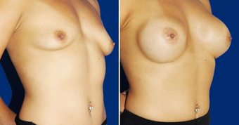 Breast Implants after 494492